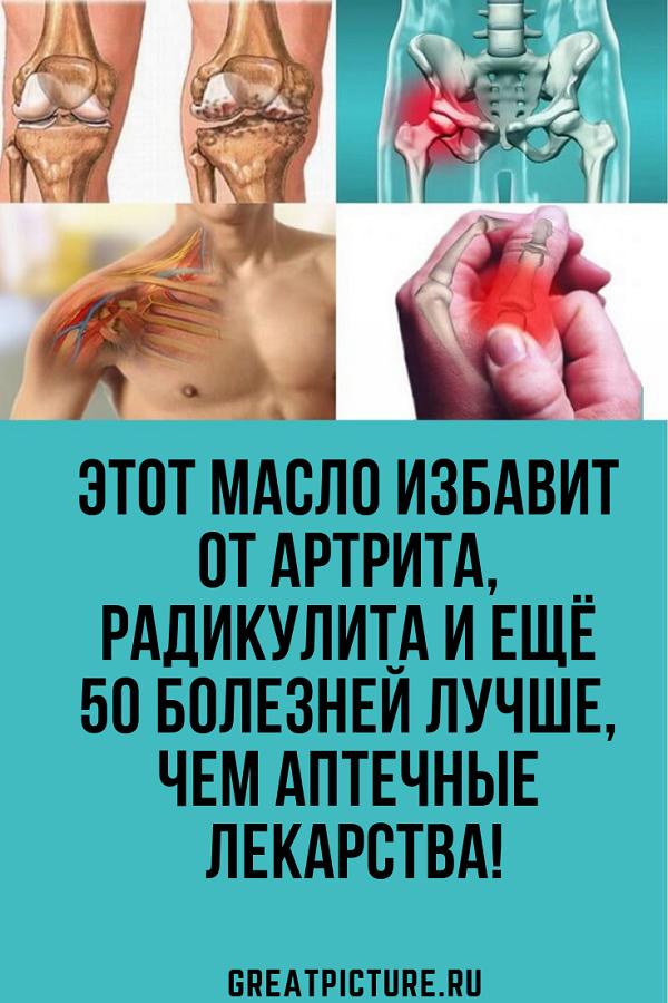 Лекарства против артрит на ръцете