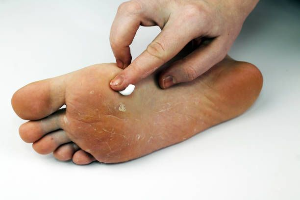 How To Cure Stubborn Toenail Fungus-Treatment For Fungal Nail ...