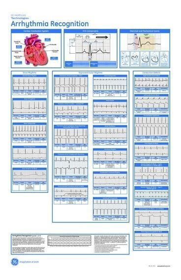 image regarding Printable Ekg Strips named Cardiac Rhythm Cheat Sheet Printable Arrhythmia