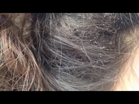 Head Lice Infestation Dad Reacts To Crawling Bugs In Kids