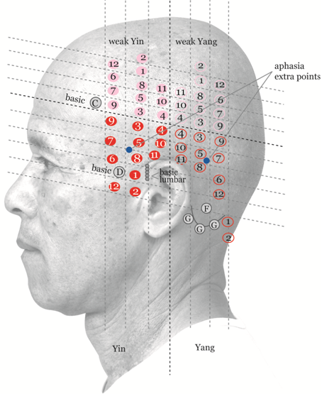 Color Atlas Of Zhu's Scalp Acupuncture Pdf Free