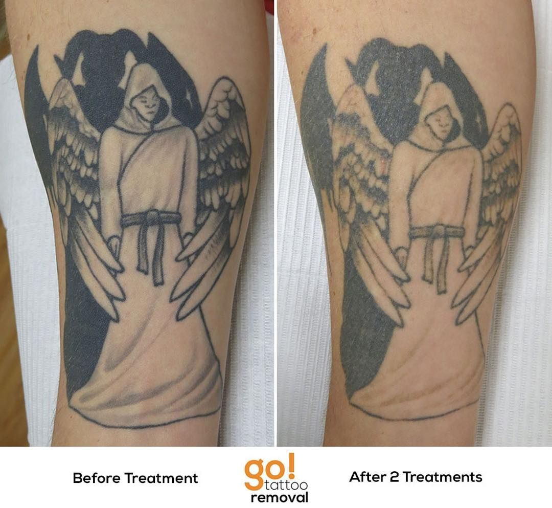 Not every tattoo will have stunning results right away