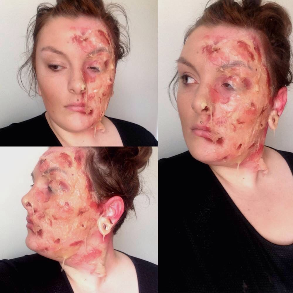 Severe acid burn Sfx melting skin | Film FX | Pinterest