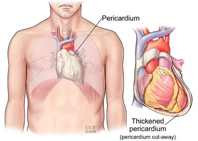 Pericarditis Inflammation Of The Pericardium Is The