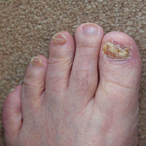 How Long Does Finger Nail Fungus Take To Heal-Treating Foot Fungus With Apple Cider Vinegar #FootSoakEssentialOils #FootSoakForToenails