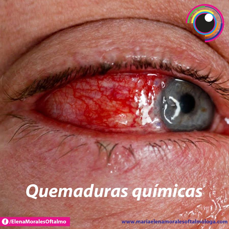 Allergic Conjunctivitis Vs Bacterial Pictures To Pin On: Las Quemaduras Químicas En Los Ojos (exposición A