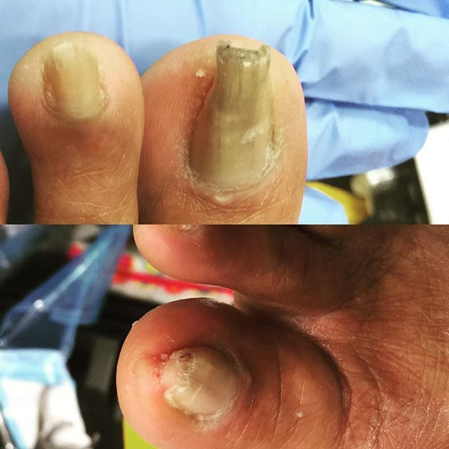 Another Satisfied Client Over Grown Pincer Nails That Were Trimmed