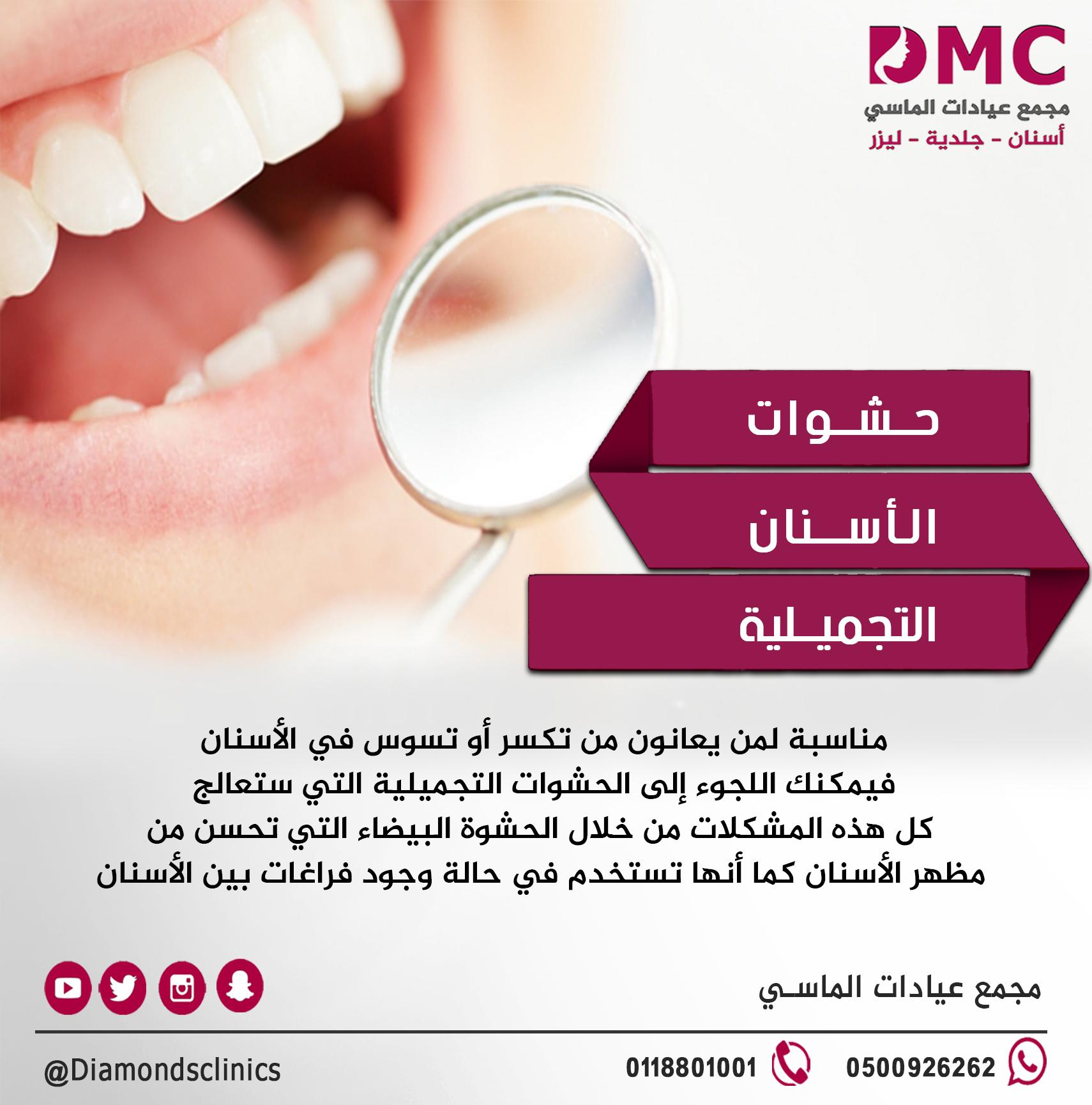 الحشوات التجميلية مناسبة لمن يعانون من تكسر أو تسوس في الأسنان فيمكنك اللجوء إلى الحشوات التجميلية التي ستعالج كل هذه المشكلات م Teeth Health Health Teeth