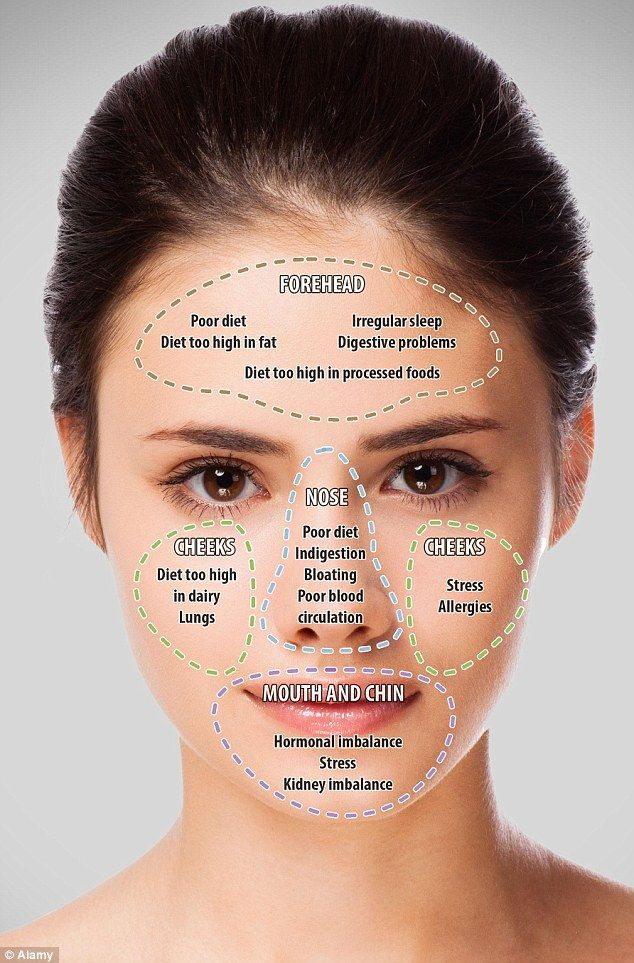 Doctor of traditional chinese medicine and wellbeing expert john tsagaris believes that breakouts on varioys areas the face can reflect different also mapping your acne what it means revealed rh pinterest
