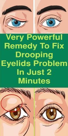 The best instant remedy to get rid of Sagging Eyel