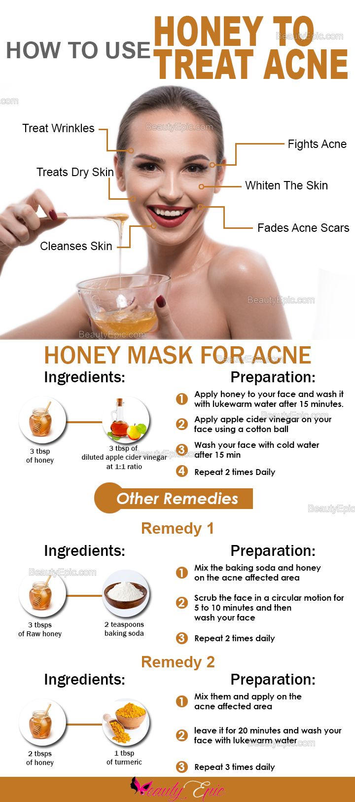 7 Effective Ways To Get Rid Of Acne With Honey How To Treat Acne Honey For Acne Acne