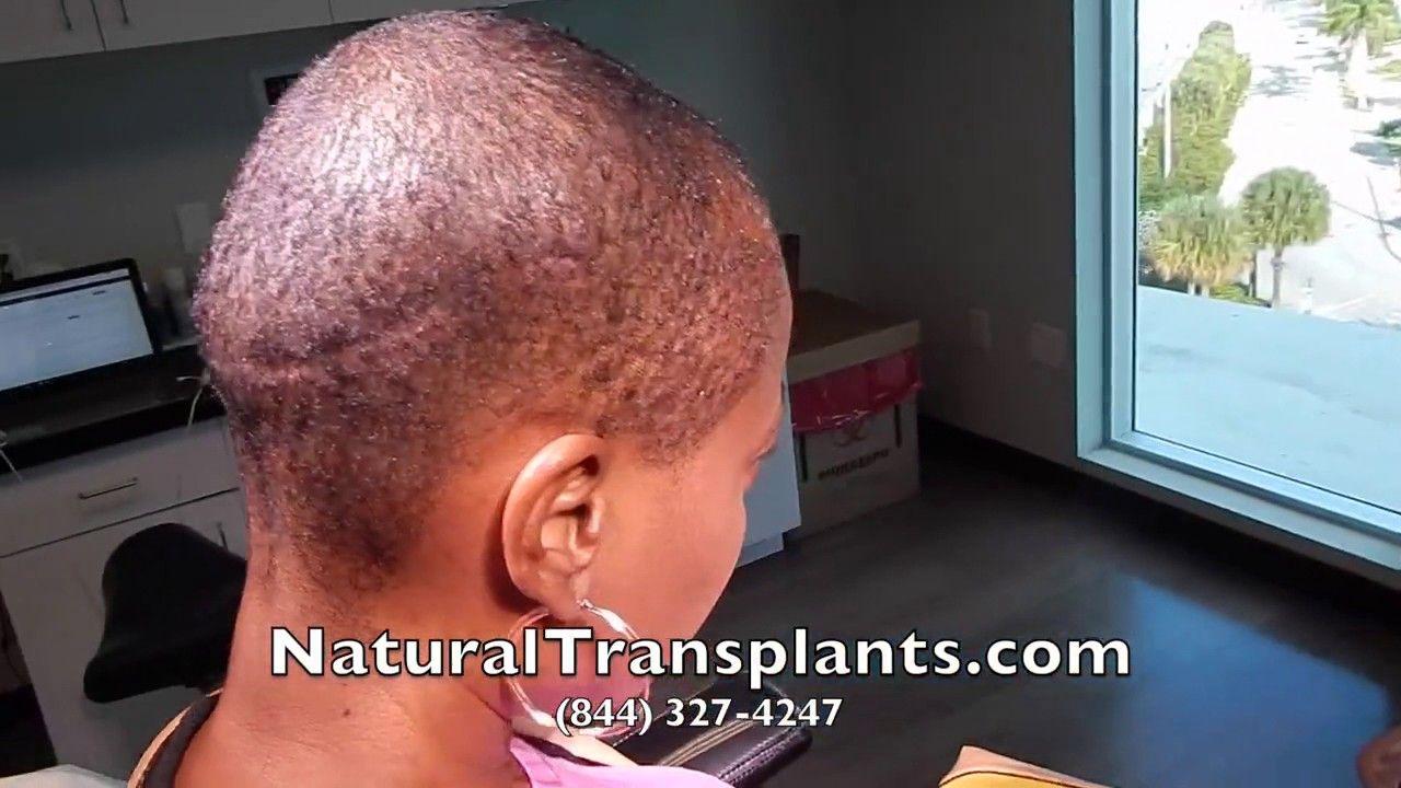 Homestead Hair Transplant Hair Implants Near Homestead