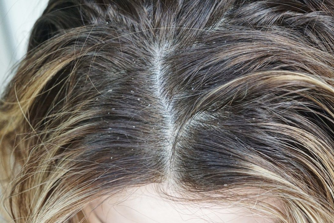 The Secret To A Flake-Free Scalp (With images) | Dandruff flakes ...