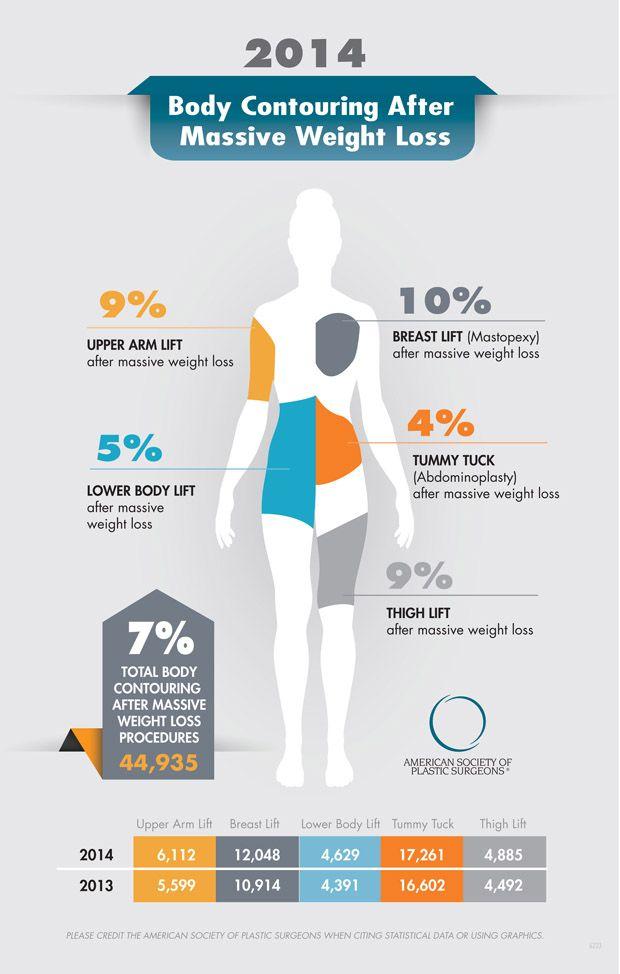 Weight loss zetia
