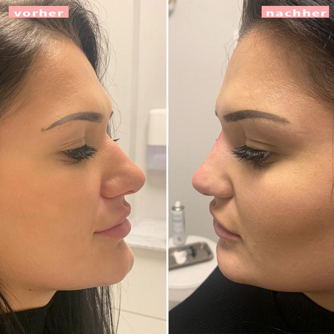 Frauen nachher bilder nasenkorrektur vorher Nasenkorrektur