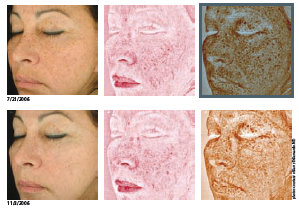 Introducing The Reveal Camera To Reverse The Signs Of Aging Aging Signs Facial Plastic Aesthetic Center