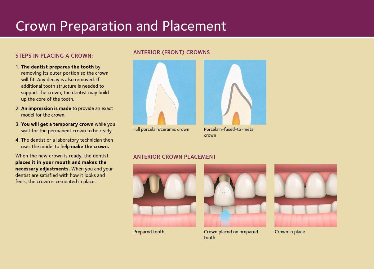 Front Crowns/Caps Dentist, Dental procedures, Oral anatomy