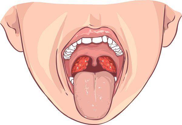 Causas de amigdalas inflamadas sintomas
