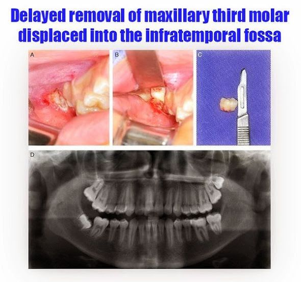 Delayed removal of maxillary third molar displaced into the infratemporal fossa | OVI Dental