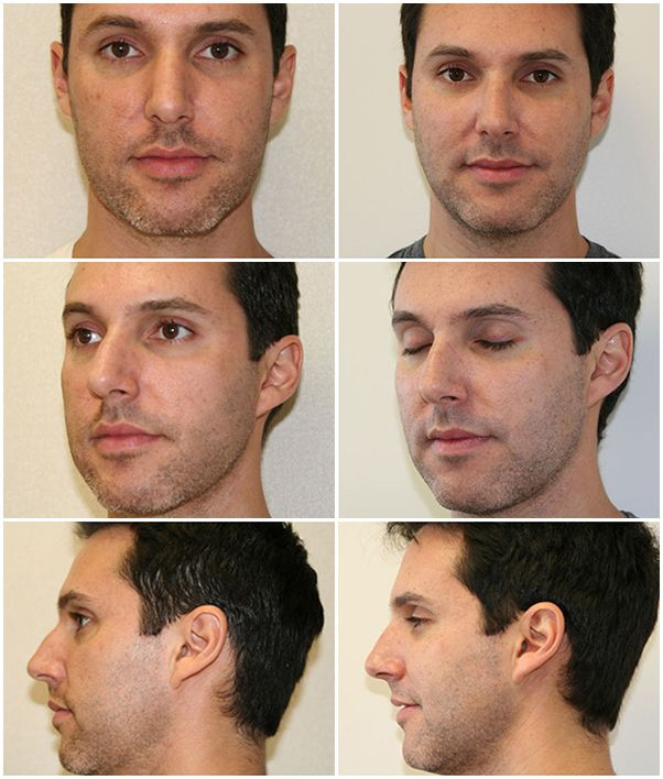 Miami Nose Surgery (Rhinoplasty) Before & After Photo www