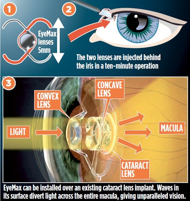The Wide Screen Eye Implant Giving Hope To Millions Uk Health