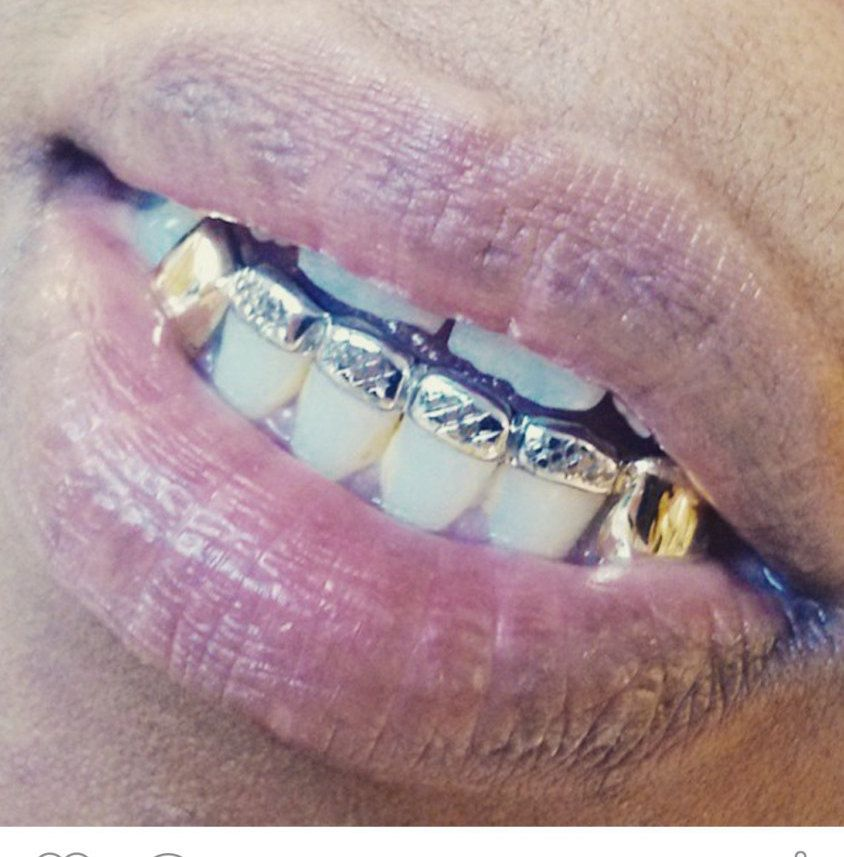 10k gold teeth fangs with front bar top or bottom by