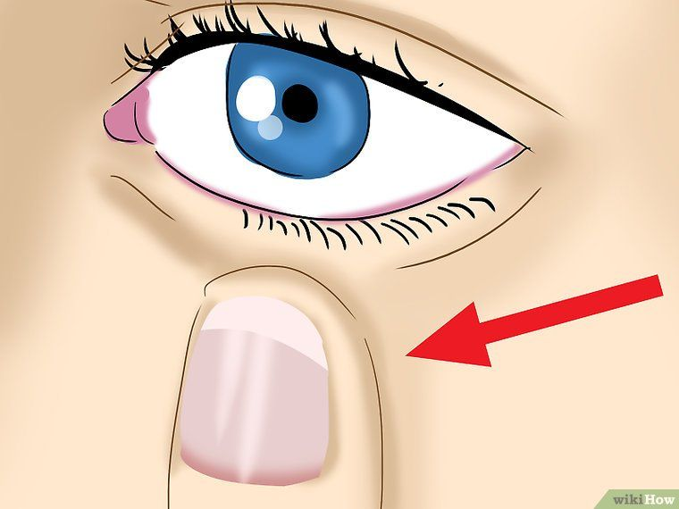 How to take out contact lenses without touching your eye