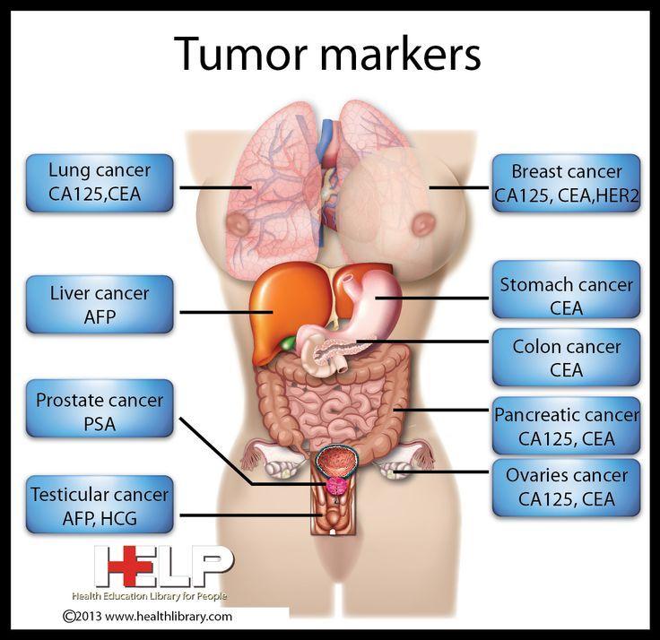 Tumor Markers: calcitonin (medullary thyroid CA); beta2 ...