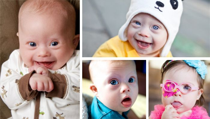 Cute Kids With Down Syndrome Ad Is Banned In France As It Could Disturb Consciences Down Syndrome Kids Cute Kids Down Syndrome