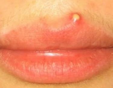 fc2c43790ddeee6bda68151e182a79ea - How To Get Rid Of Small White Bumps On Lips