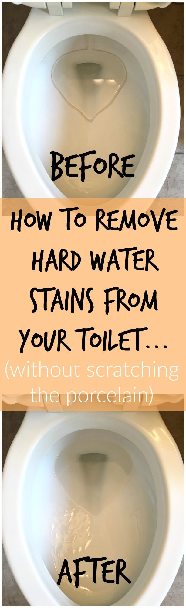 Nov 16 How To Remove Hard Water Stains From Toilets