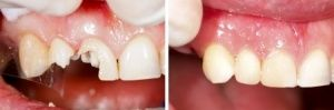 If you are suffering from any dental problem then Buckingham dental is the best place where you will get best treatment for all your dental problems because their entire team is expert in latest dental practices. They are providing services like composite filling, dental crowns, cosmetic dentistry etc.