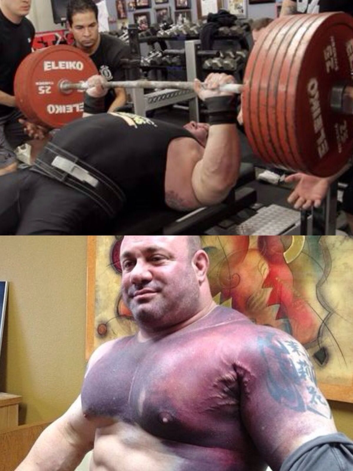 Scott Mendelson After He Tore His Pec Trying For The World Record Bench Press 716 5 Lb Or 325 Kg Nopainnogain Bench Press Pumping Iron Health Plus