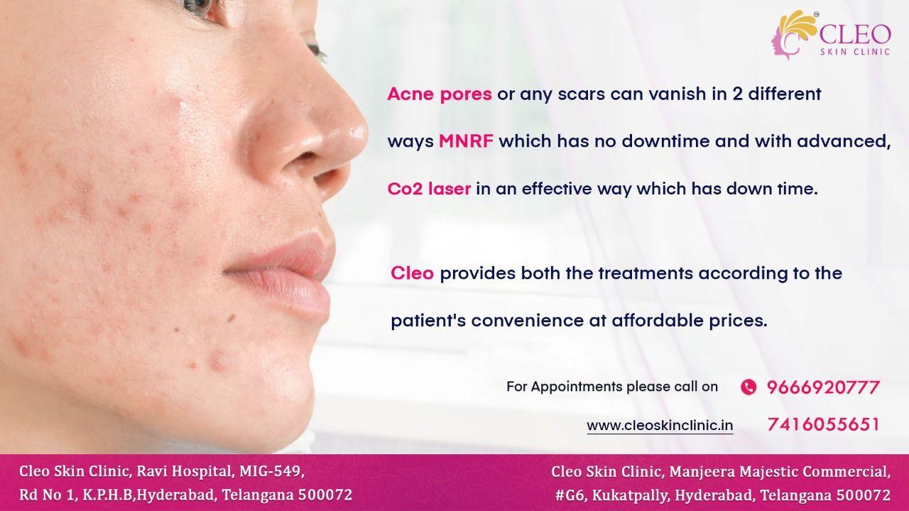 Pin By Cleo Skin Clinic On Cleo Skin Clinic In 2020 Skin Clinic Skin Co2 Laser