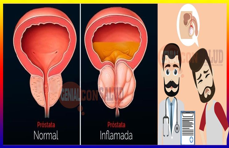 para tratar la próstata