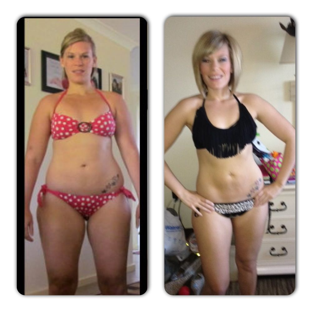 Weight loss with lupus picture 4