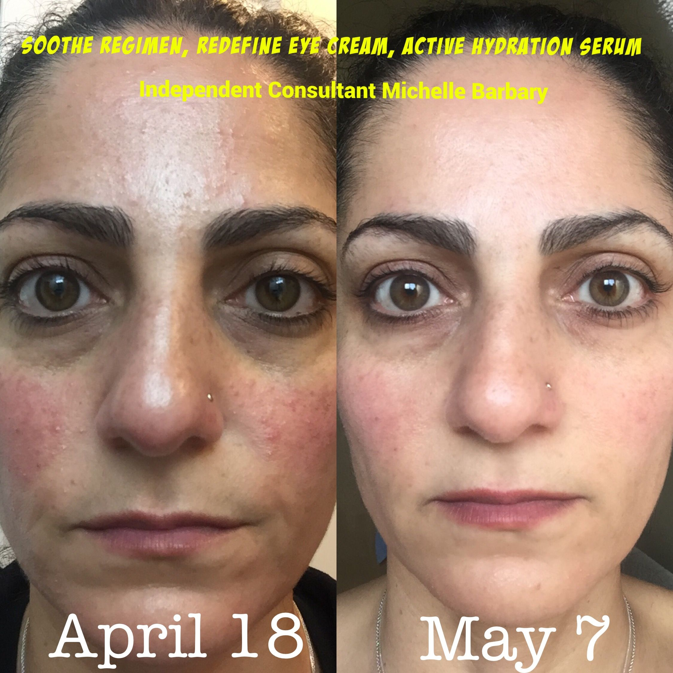 My Personal Results Rodan Fields Soothe Regimen With Active Make Over Hydration Serum