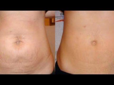 Quitar la del estrias abdomen como y flacidez
