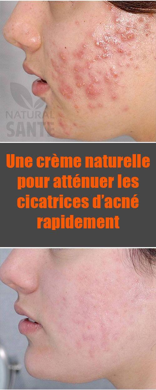 une cr me naturelle pour att nuer les cicatrices d acn rapidement cicatrices acn cicatrice