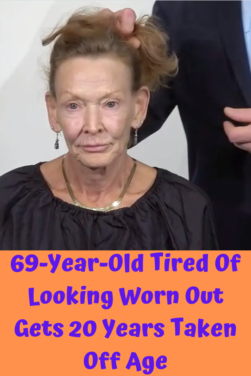 69-Year-Old Tired Of Looking Worn Out Gets 20 Year