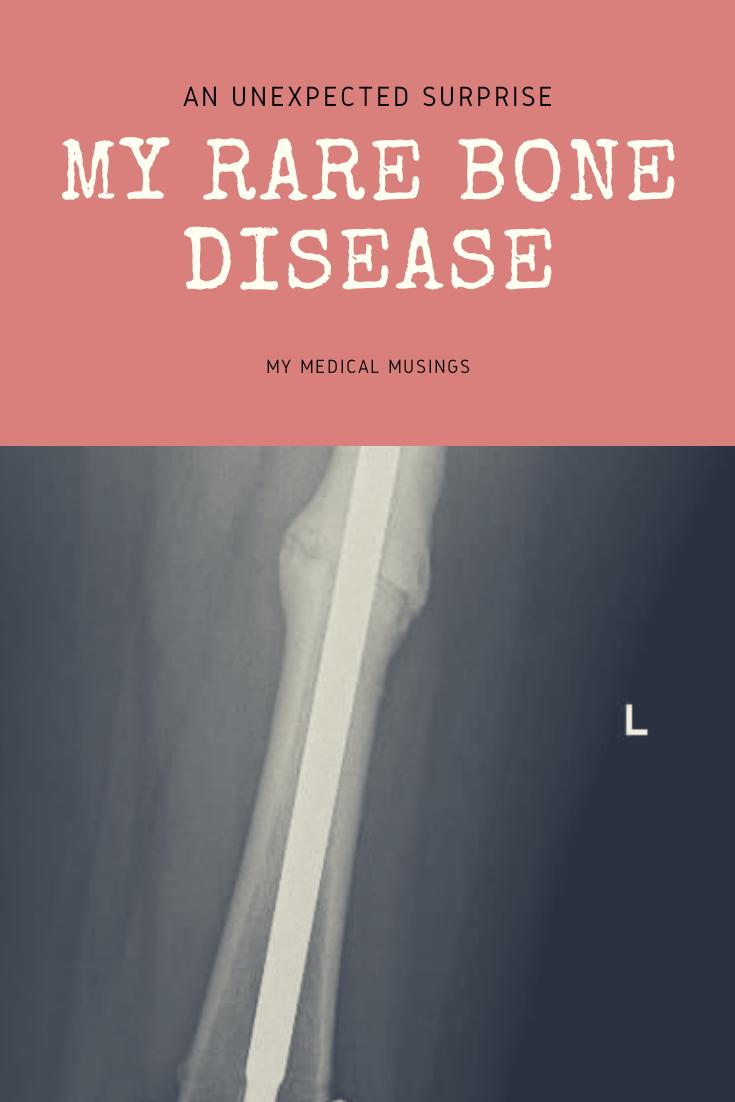 It's A Rare Genetic Bone Disease | Bone diseases, Disease ...