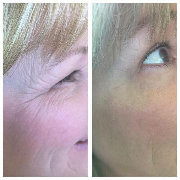 90 second results using It Works! WOW - Wipe Out Wrinkles! http://bit.ly/itworksWOW #itworkswow #eyedare