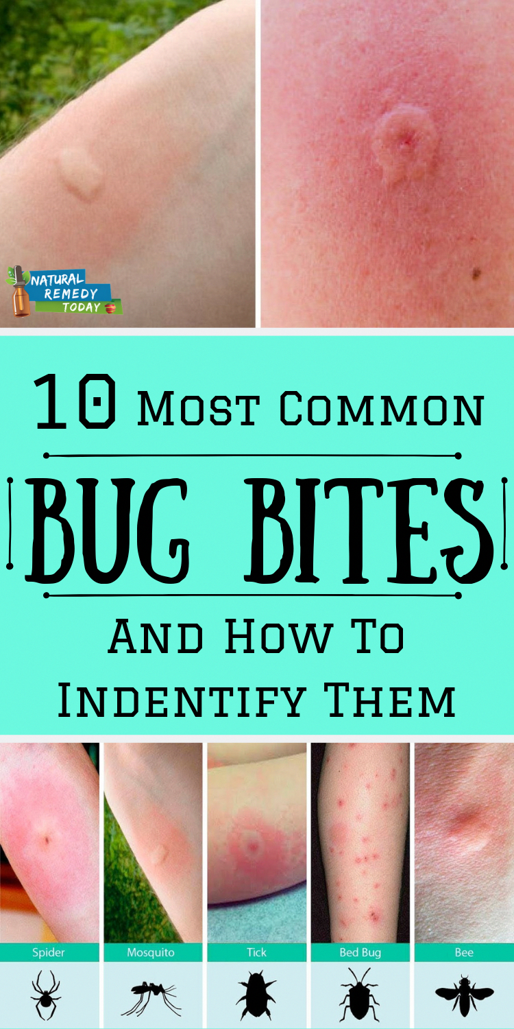 How to Identify Bedbugs and Distinguish Them From Other