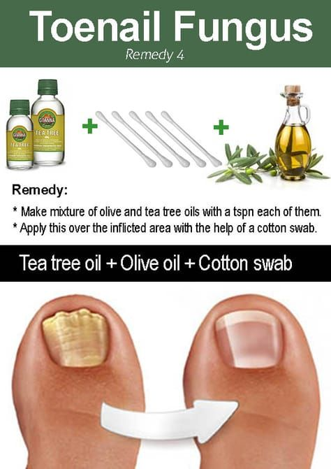 10 Amazing ways to use Tea tree oil for toenail fungus | Elderly ...