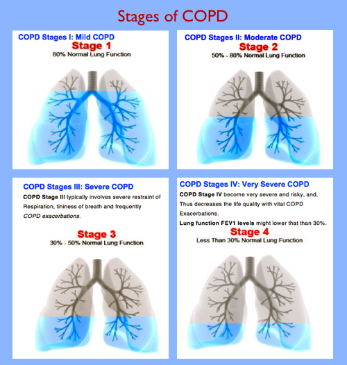 a description of the different respiratory problems bronchitis emphysema asthma and poliomyelitis What is copd chronic obstructive pulmonary disease (copd) is an umbrella term used to describe progressive lung diseases including emphysema, chronic bronchitis, and refractory (non-reversible) asthma.