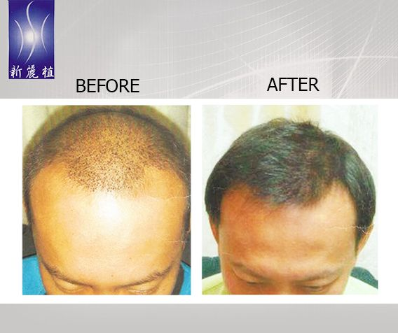 Ashamed of thinning hair? We've got you covered! After trying our Fue Hair Transplant Treatment, you won't be needing caps and wigs. Your hair will grow back in just short period of time. Here's a before and after photo of our valued customer who has undergone Fuel hair Transplant Treatment. Call (65) 6337-8066 and make an appointment today. For more details about Hair Synergy, visit our website at http://www.hairsynergy.com. #hairsynergy #hairsynergysg #haircare #haircaresg #sghair…