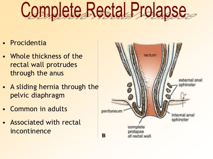 Causes of rectal prolapse in adults-2383