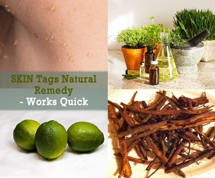 how to shrink hemorrhoid skin tag naturally