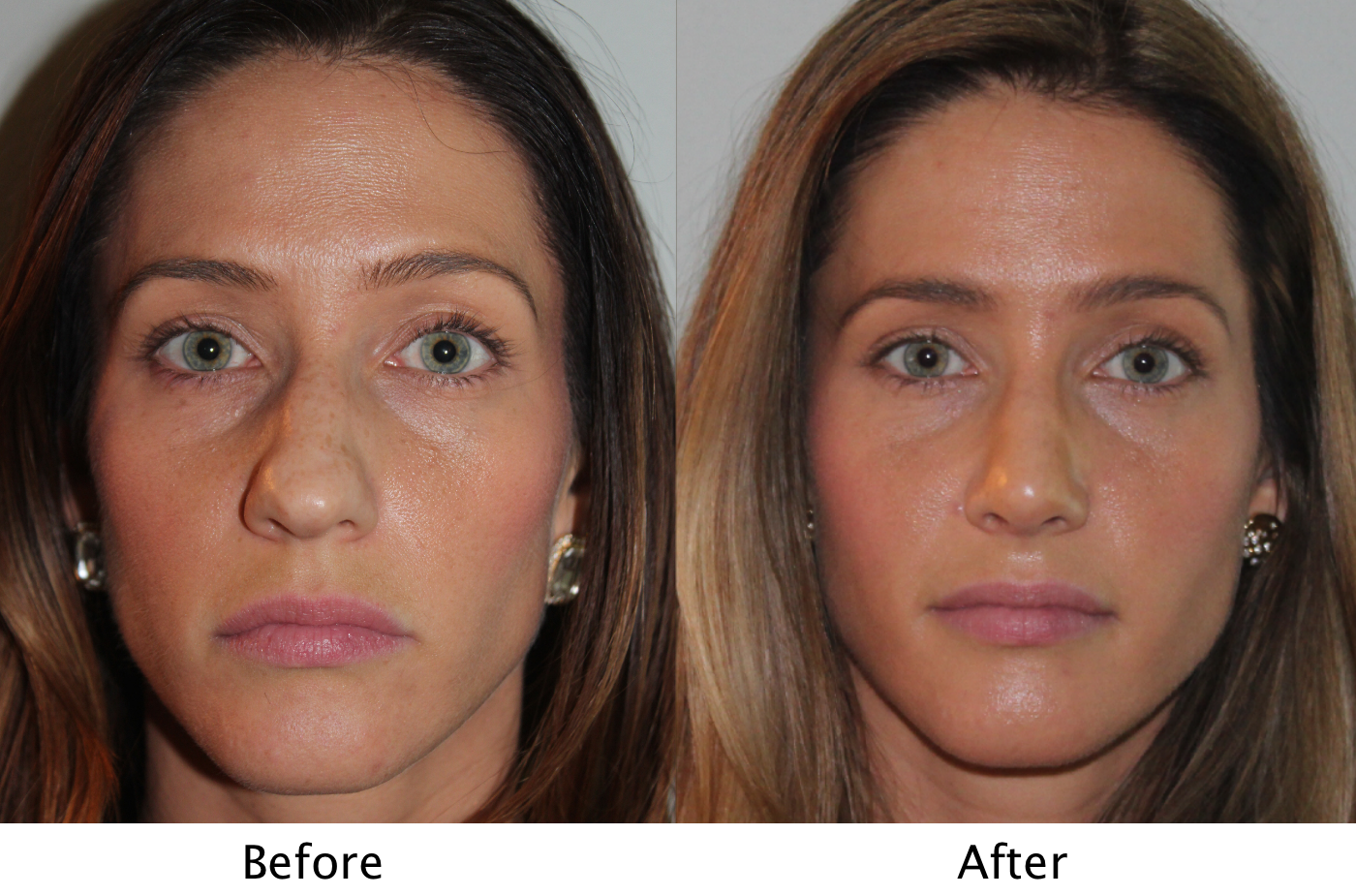 4097ff1f34 Female Patient before and after sinus surgery