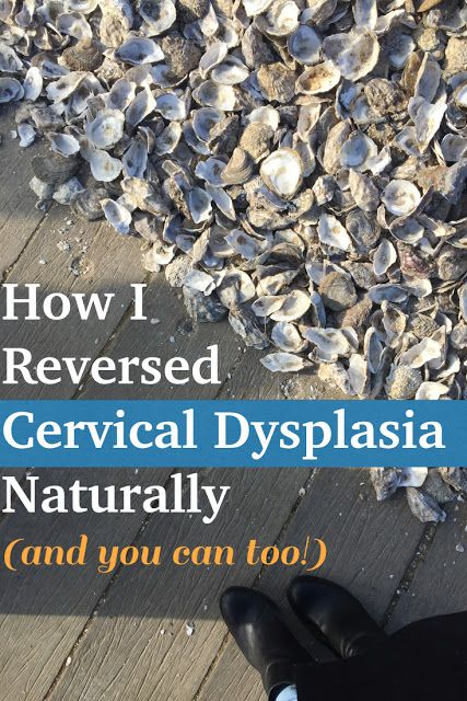 The NYC Diet: How I Reversed Cervical Dysplasia Naturally